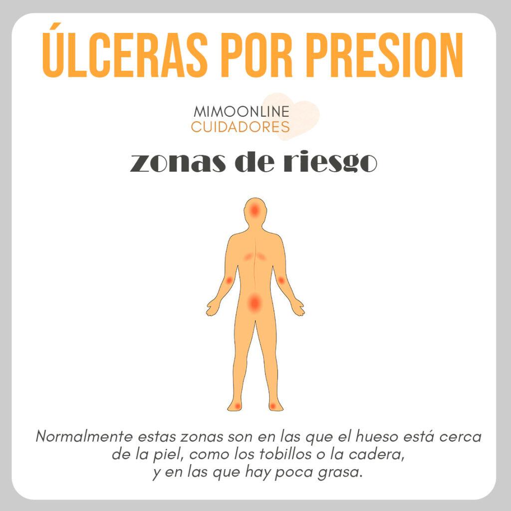 ilustración con las zonas de riesgo de aparición de una úlcera por presión en personas que pasan mucho tiempo tumbadas o sentadas